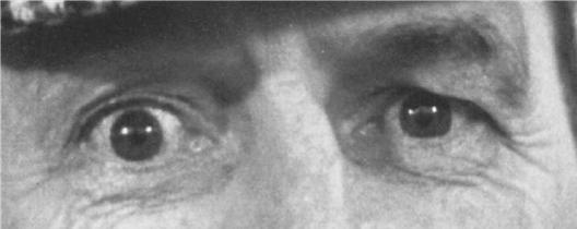 Image des yeux
